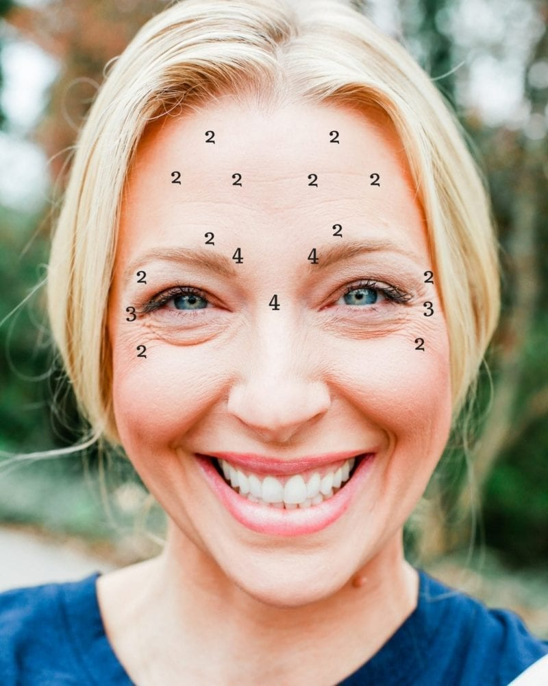 How much botox should I get? A before and after botox review.