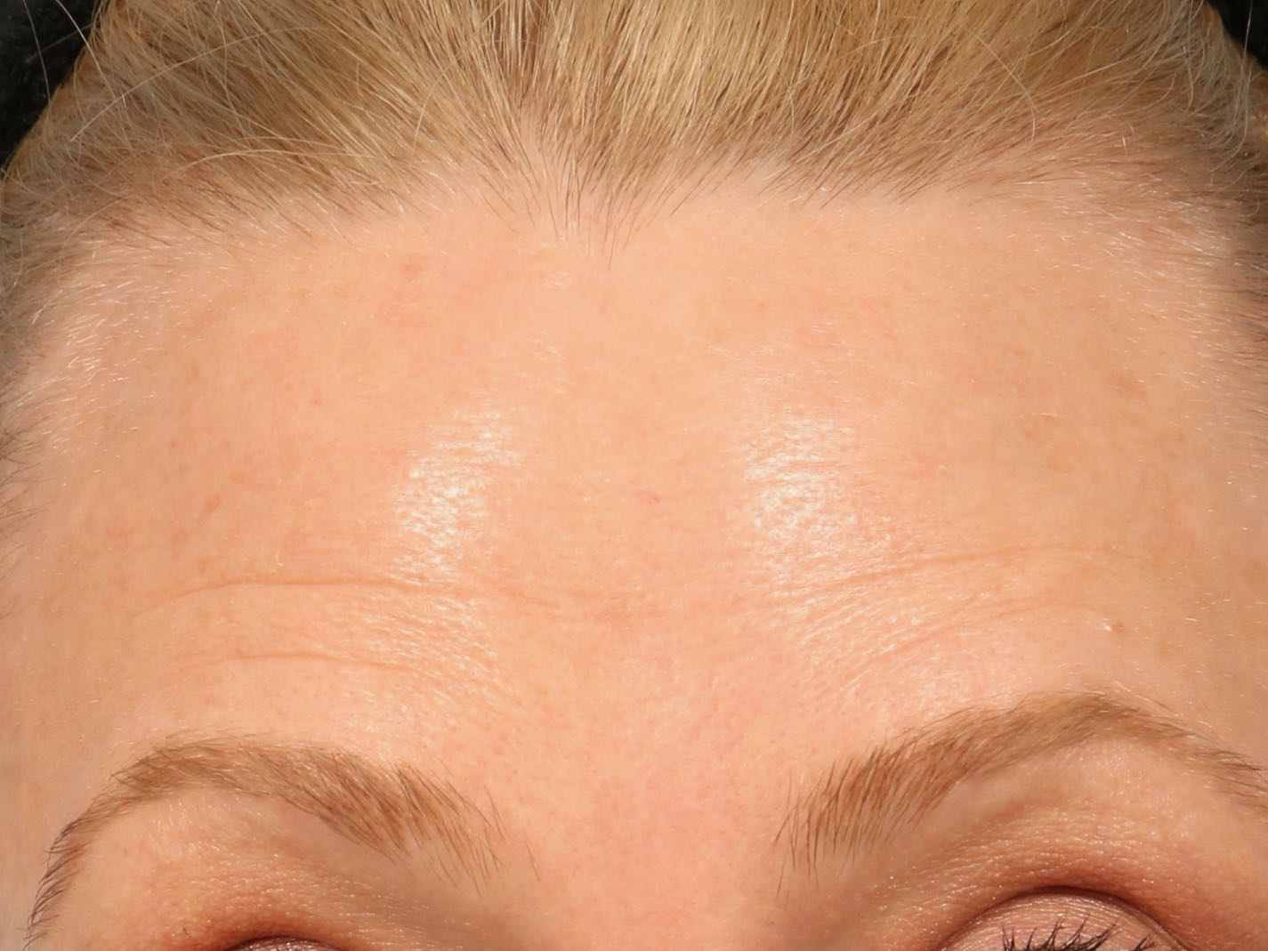 skinmedica before and after pictures